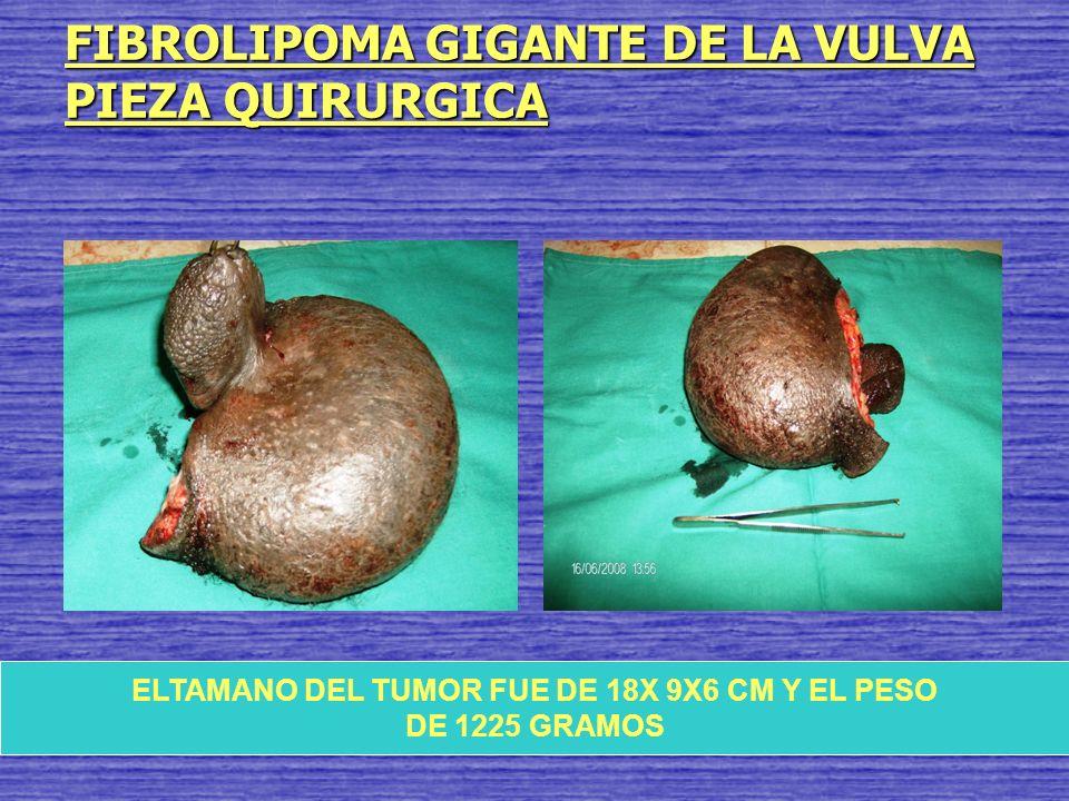 FIBROLIPOMA GIGANTE DE LA VULVA PIEZA QUIRURGICA