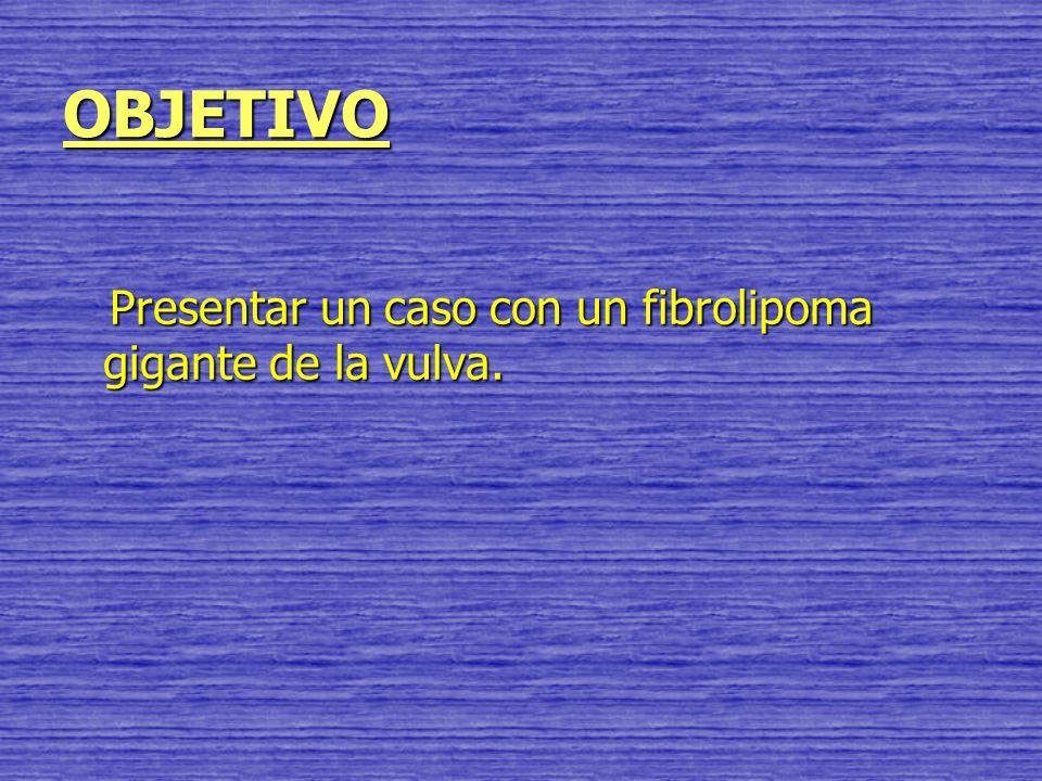 OBJETIVO Presentar un caso con un fibrolipoma gigante de la vulva.