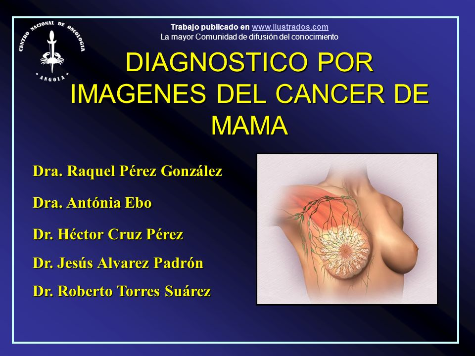DIAGNOSTICO POR IMAGENES DEL CANCER DE MAMA
