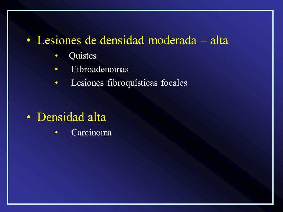 Lesiones de densidad moderada – alta