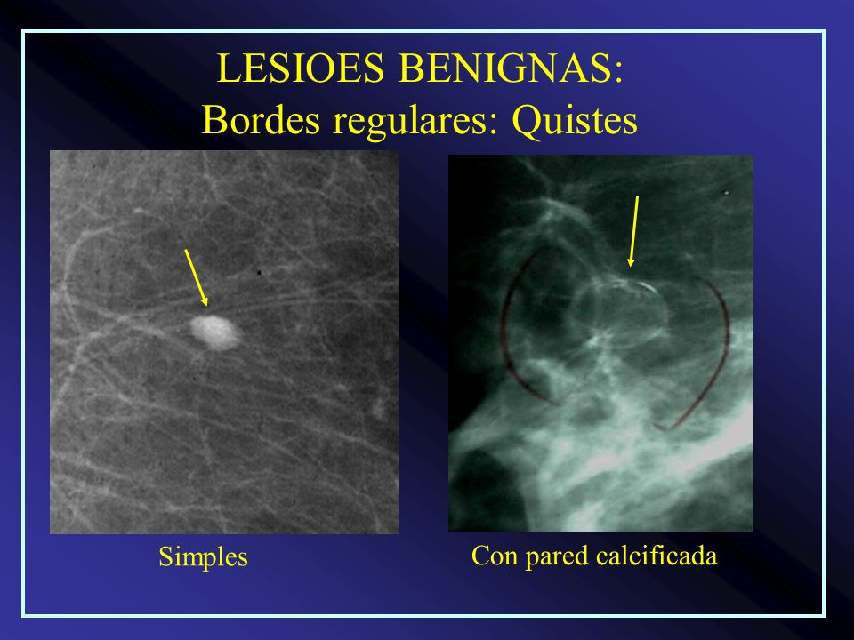 LESIOES BENIGNAS: Bordes regulares: Quistes