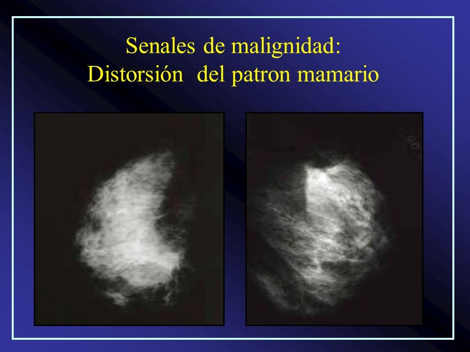Senales de malignidad: Distorsión del patron mamario