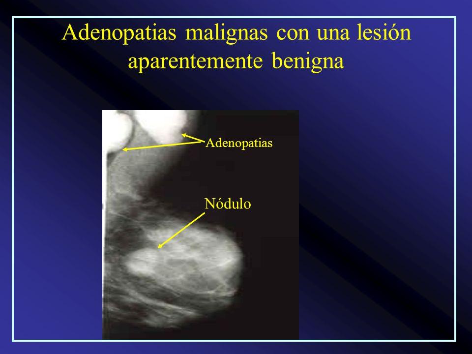 Adenopatias malignas con una lesión aparentemente benigna