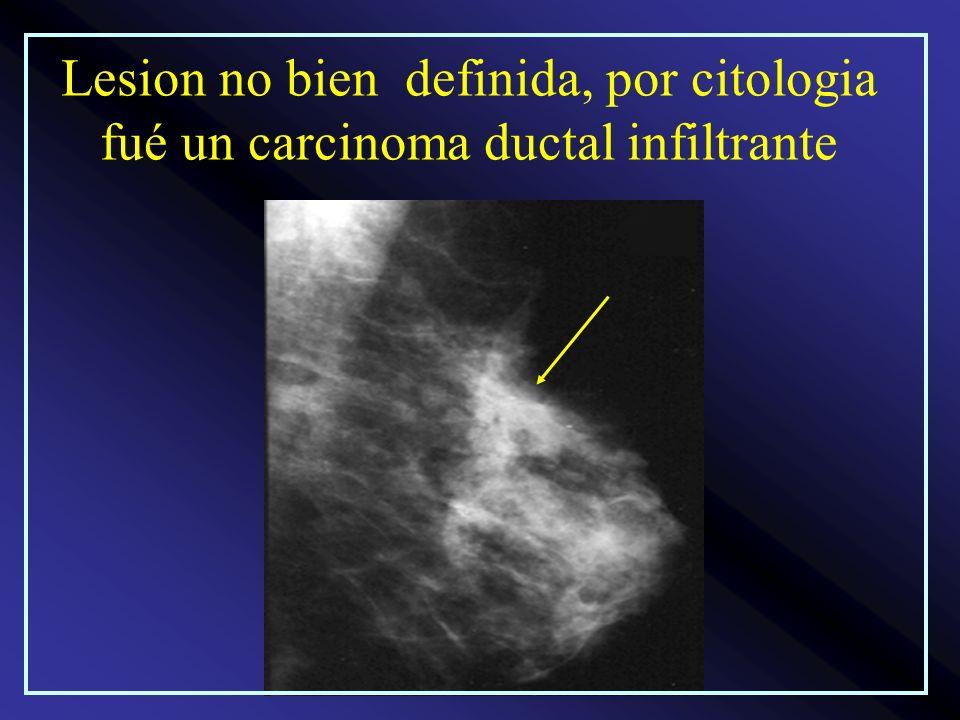 Lesion no bien definida, por citologia fué un carcinoma ductal infiltrante
