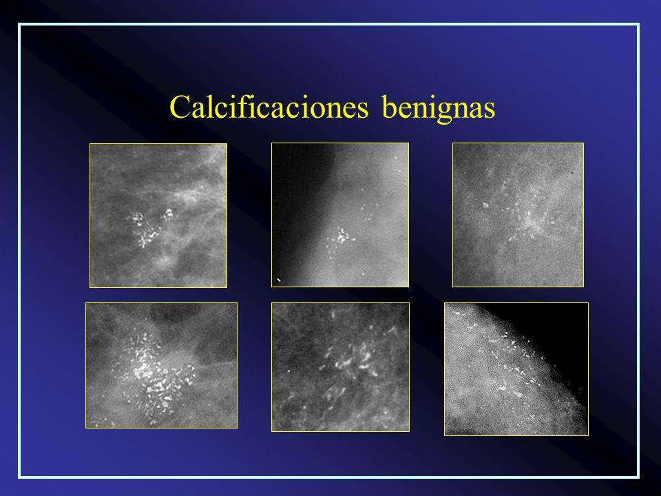 Calcificaciones benignas