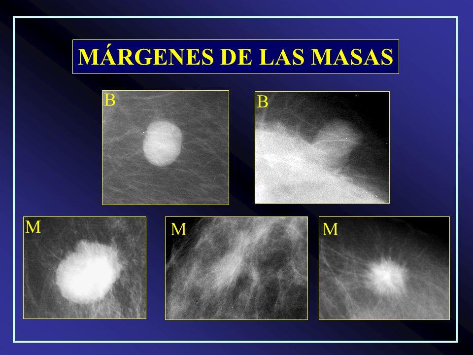 MÁRGENES DE LAS MASAS B B M M M