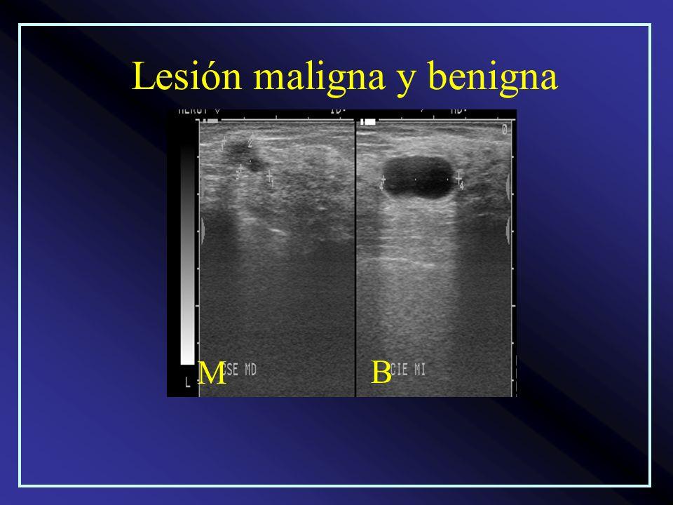 Lesión maligna y benigna