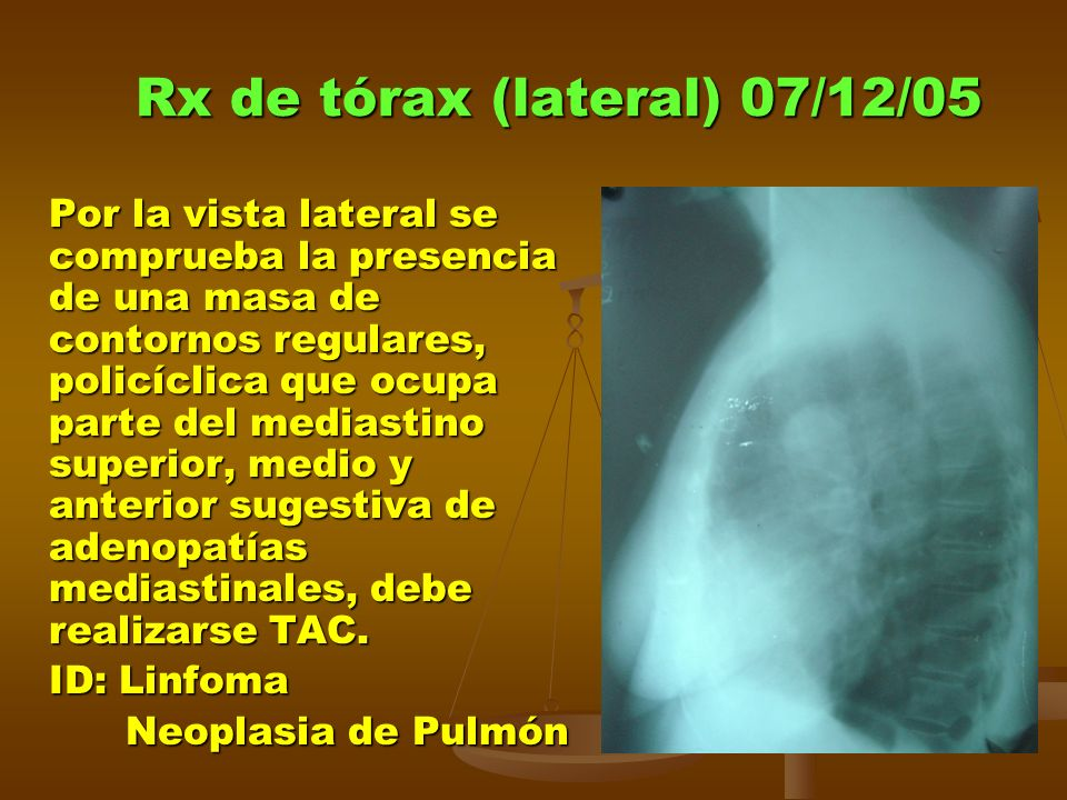 Rx de tórax (lateral) 07/12/05