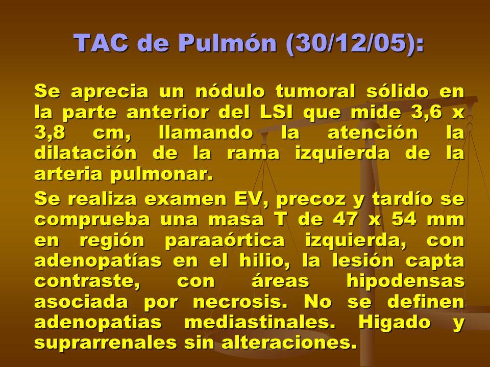 TAC de Pulmón (30/12/05):