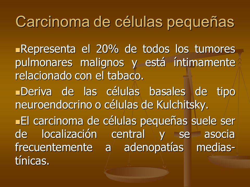 Carcinoma de células pequeñas