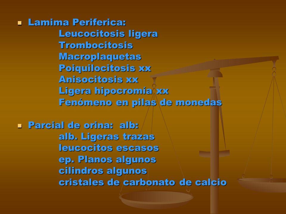 Lamima Periferica: Leucocitosis ligera. Trombocitosis. Macroplaquetas. Poiquilocitosis xx. Anisocitosis xx.