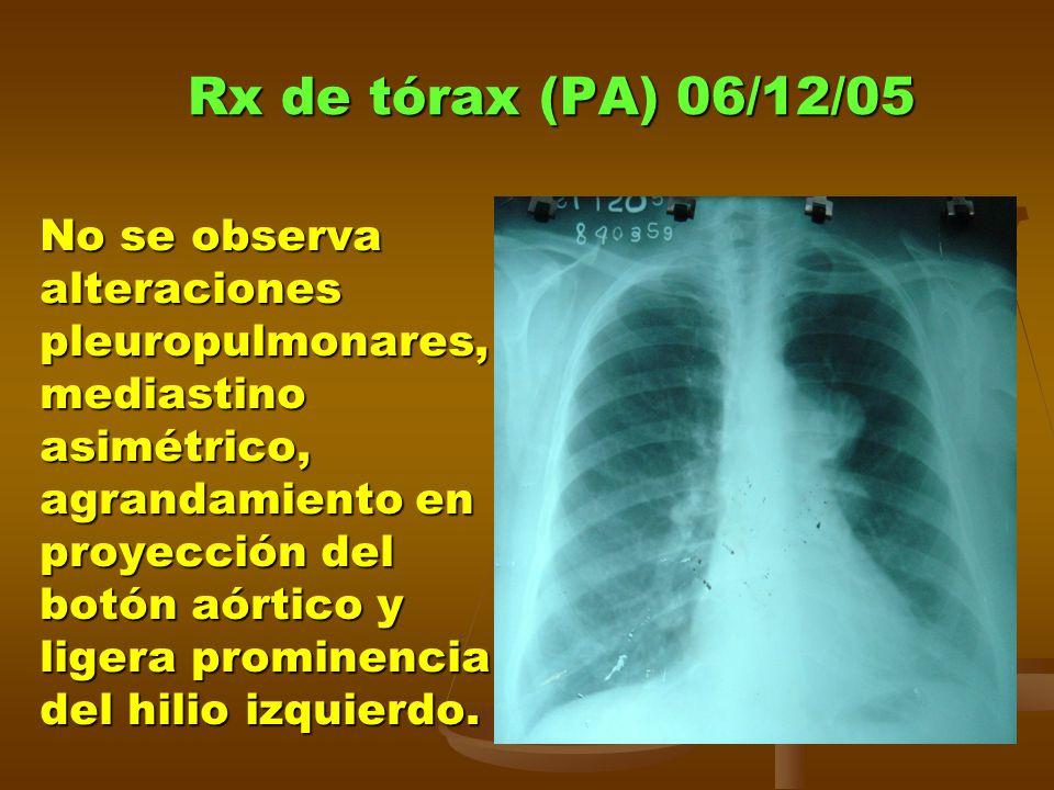 Rx de tórax (PA) 06/12/05