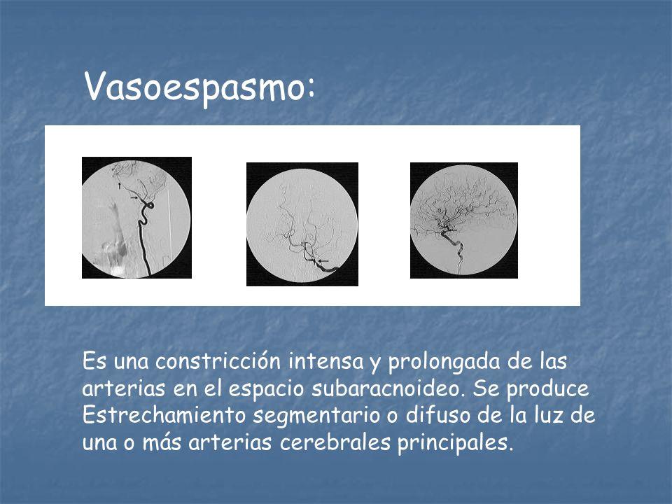 Vasoespasmo: Es una constricción intensa y prolongada de las