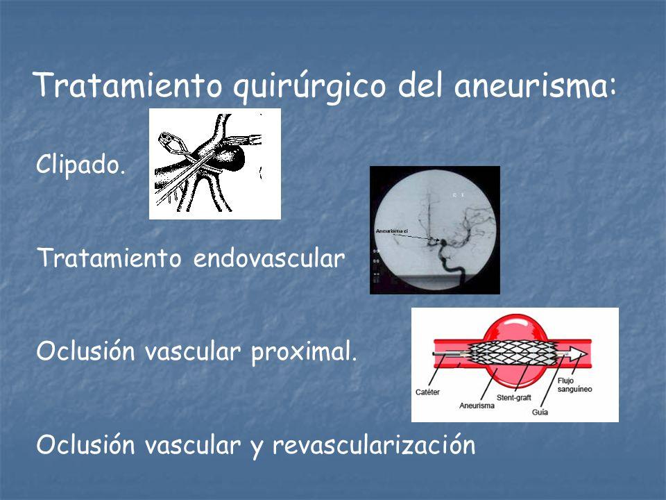 Tratamiento quirúrgico del aneurisma: