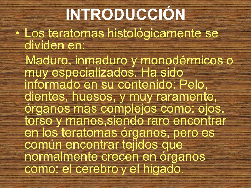 INTRODUCCIÓN Los teratomas histológicamente se dividen en:
