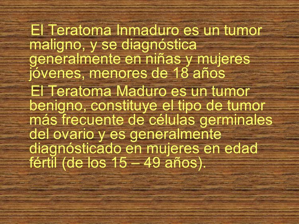 El Teratoma Inmaduro es un tumor maligno, y se diagnóstica generalmente en niñas y mujeres jóvenes, menores de 18 años