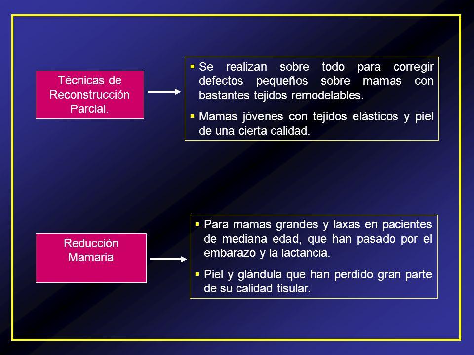 Técnicas de Reconstrucción Parcial.