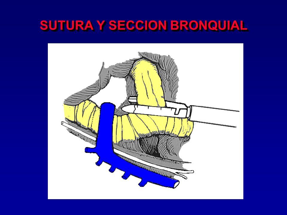 SUTURA Y SECCION BRONQUIAL