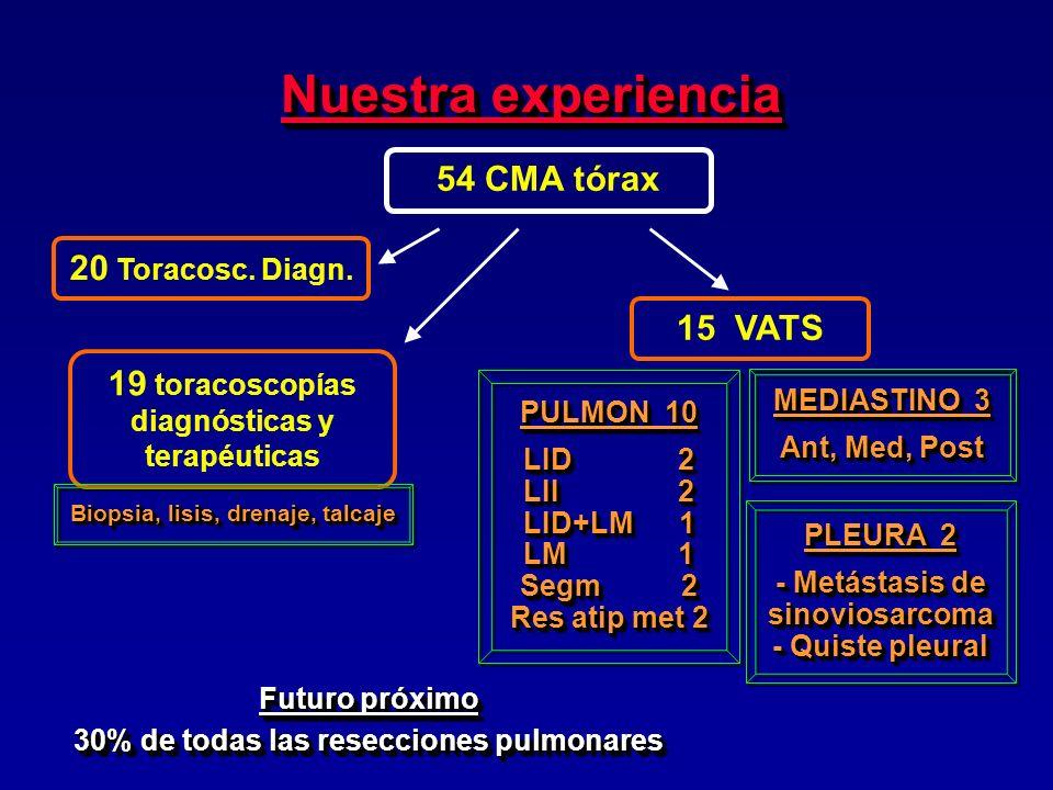 Nuestra experiencia 54 CMA tórax 20 Toracosc. Diagn. 15 VATS