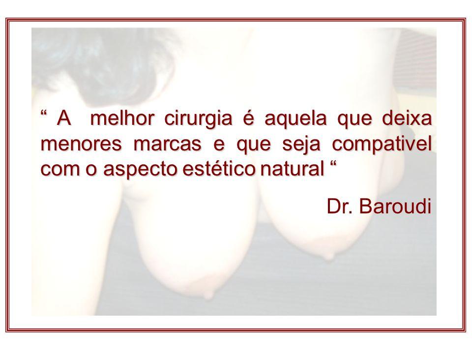 A melhor cirurgia é aquela que deixa menores marcas e que seja compativel com o aspecto estético natural