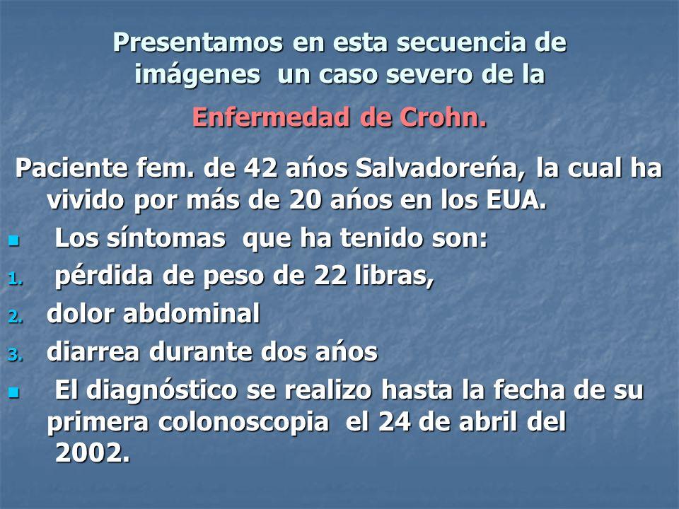 Presentamos en esta secuencia de imágenes un caso severo de la Enfermedad de Crohn.