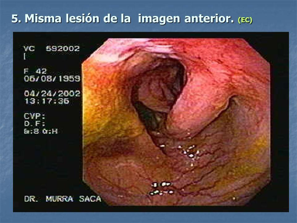 5. Misma lesión de la imagen anterior. (EC)