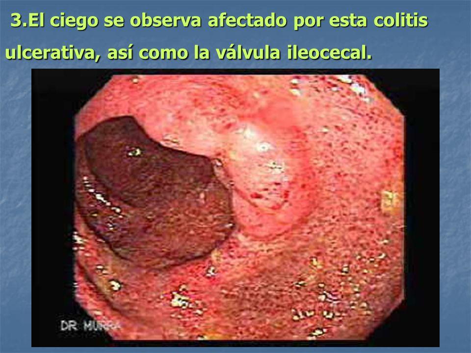 3.El ciego se observa afectado por esta colitis ulcerativa, así como la válvula ileocecal.