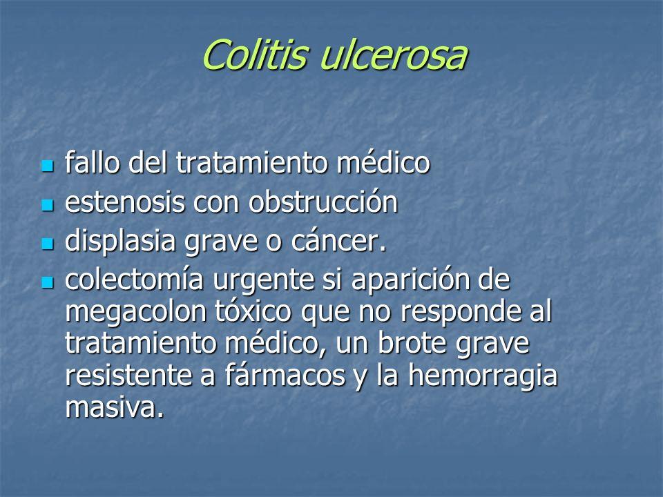 Colitis ulcerosa fallo del tratamiento médico