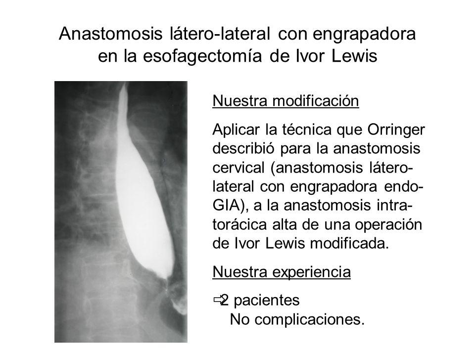 Anastomosis látero-lateral con engrapadora en la esofagectomía de Ivor Lewis