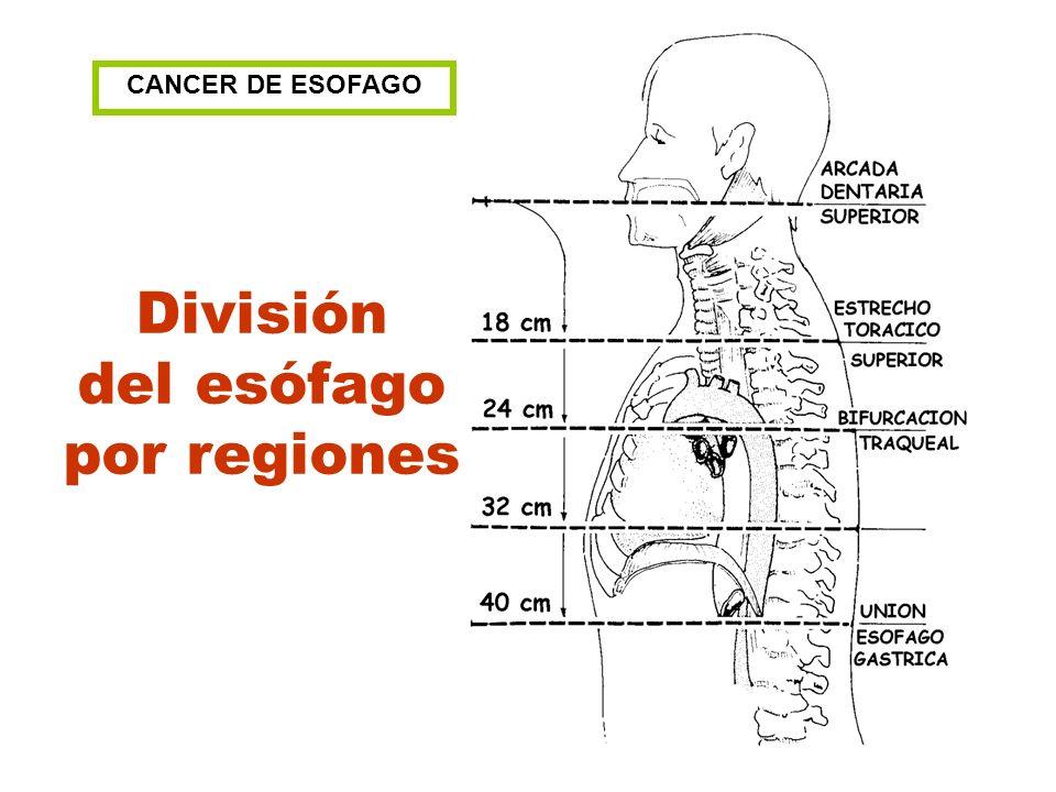 División del esófago por regiones