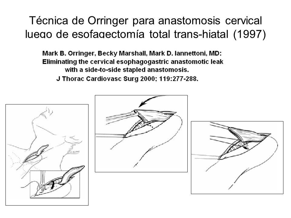 Técnica de Orringer para anastomosis cervical luego de esofagectomía total trans-hiatal (1997)