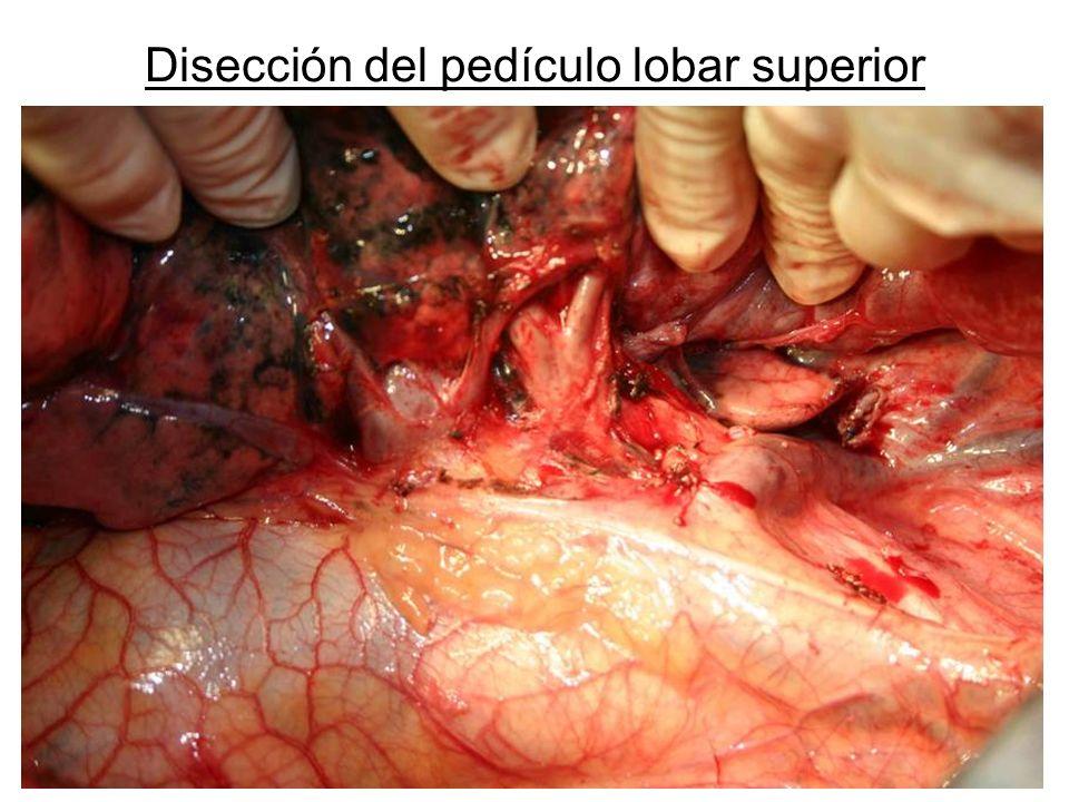 Disección del pedículo lobar superior