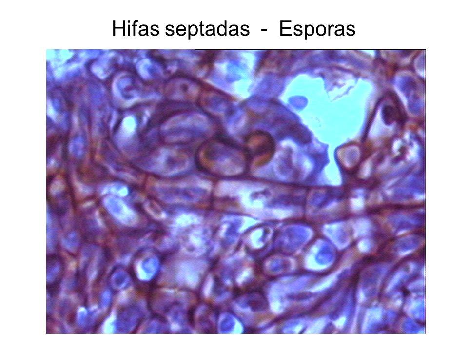 Hifas septadas - Esporas