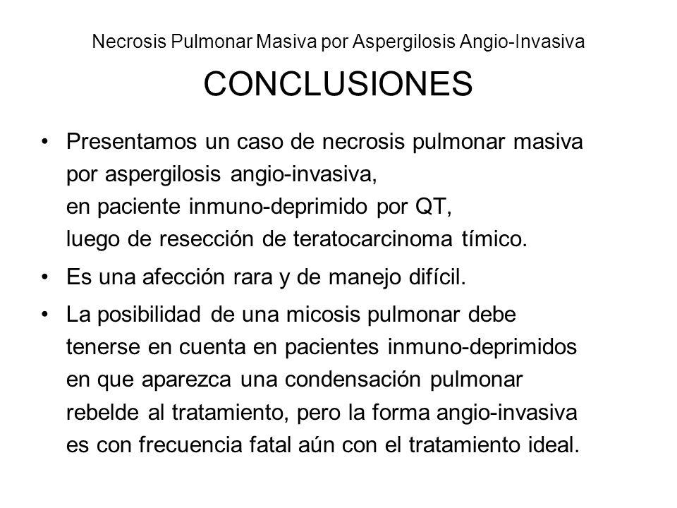 Necrosis Pulmonar Masiva por Aspergilosis Angio-Invasiva CONCLUSIONES