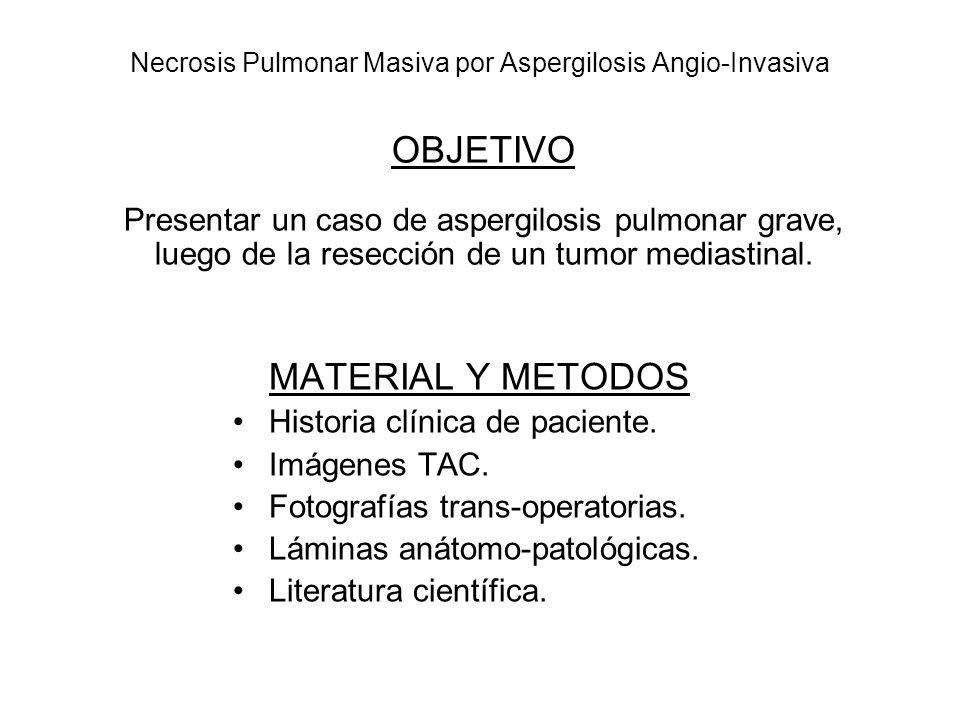 Necrosis Pulmonar Masiva por Aspergilosis Angio-Invasiva