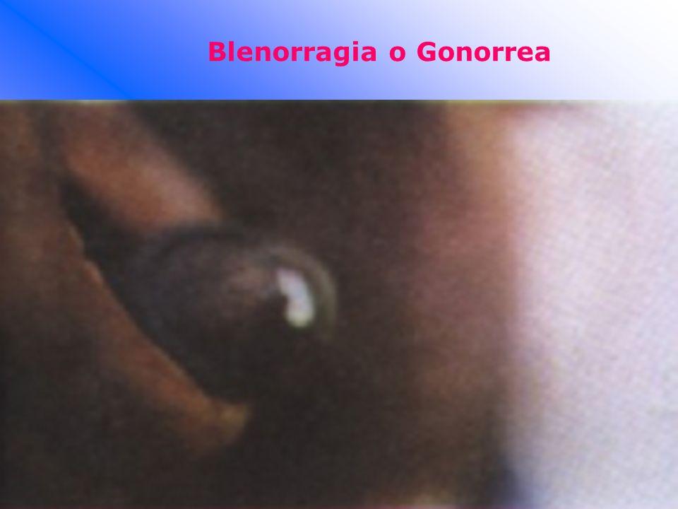 Blenorragia o Gonorrea