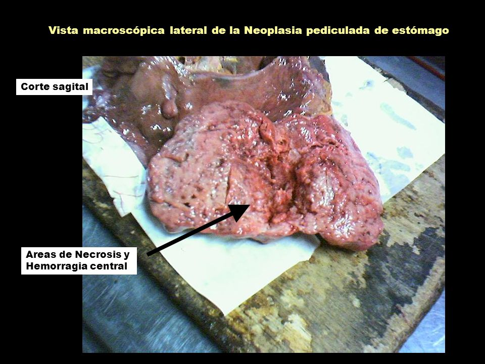 Vista macroscópica lateral de la Neoplasia pediculada de estómago