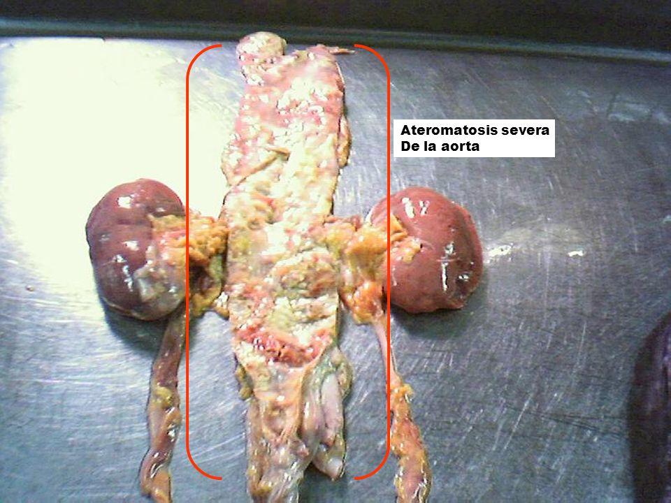 Ateromatosis severa De la aorta