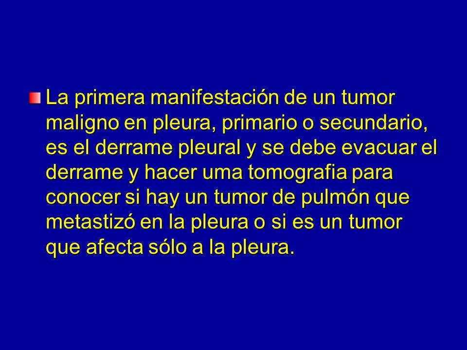 La primera manifestación de un tumor maligno en pleura, primario o secundario, es el derrame pleural y se debe evacuar el derrame y hacer uma tomografia para conocer si hay un tumor de pulmón que metastizó en la pleura o si es un tumor que afecta sólo a la pleura.