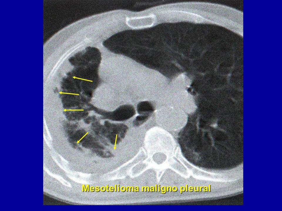 Mesotelioma maligno pleural