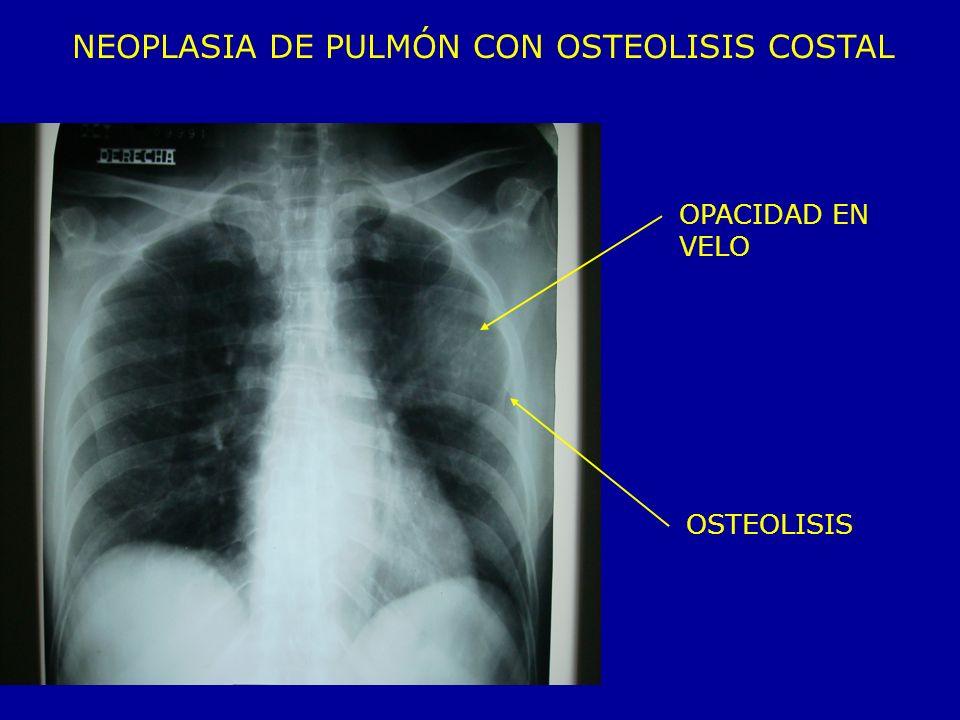 NEOPLASIA DE PULMÓN CON OSTEOLISIS COSTAL