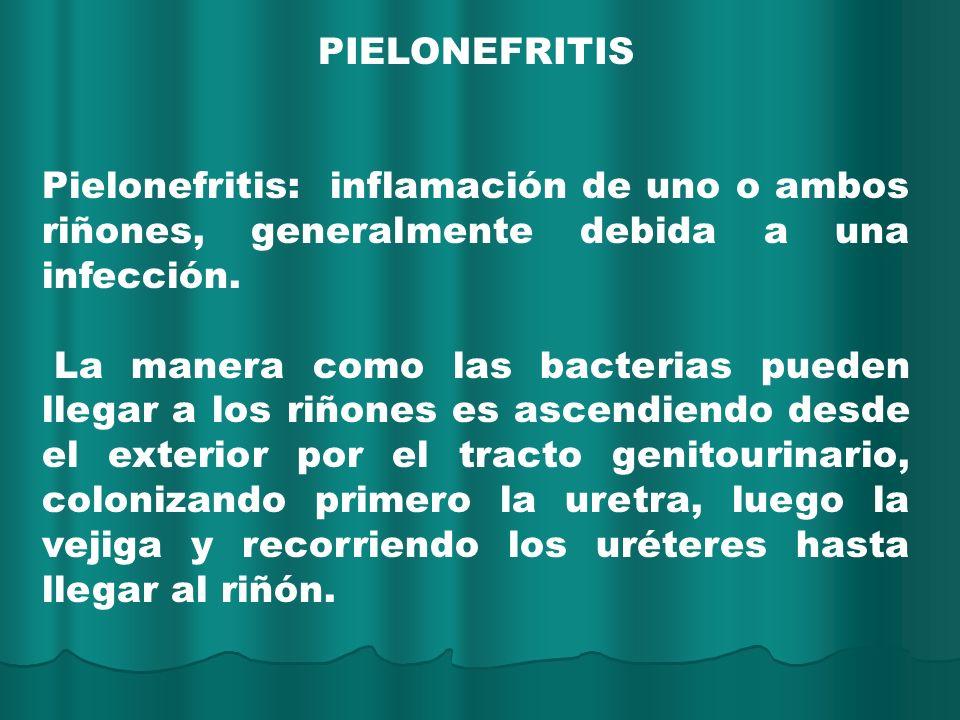 PIELONEFRITIS Pielonefritis: inflamación de uno o ambos riñones, generalmente debida a una infección.
