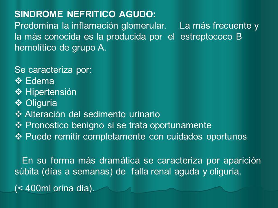 SINDROME NEFRITICO AGUDO: