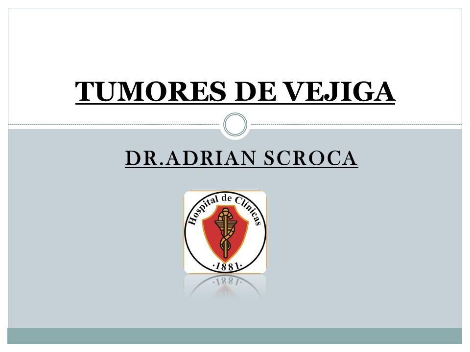 TUMORES DE VEJIGA DR.ADRIAN SCROCA
