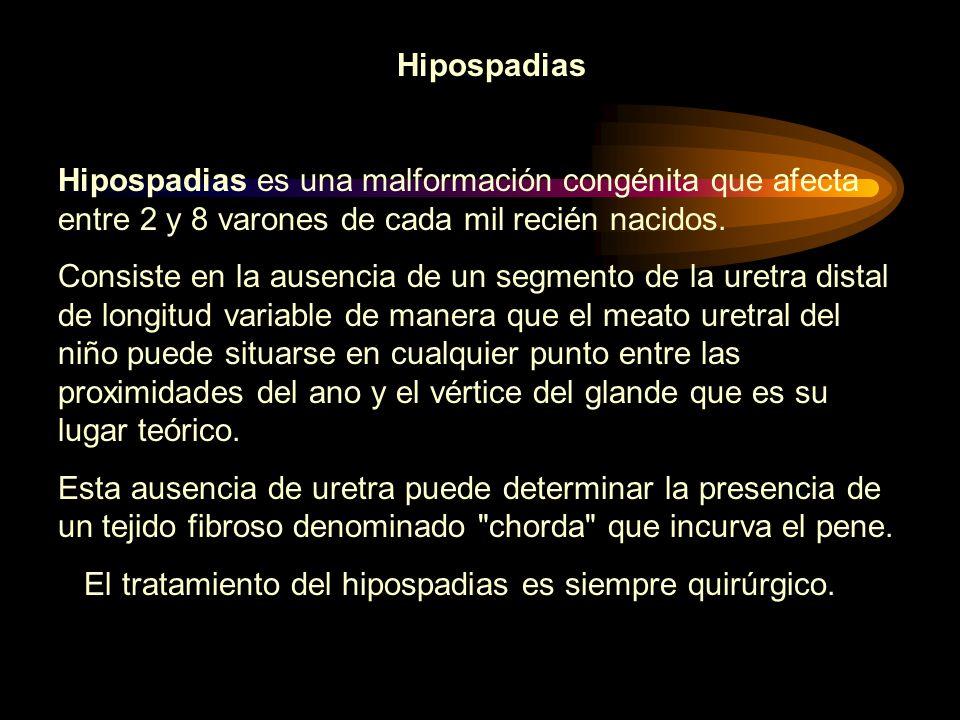 Hipospadias Hipospadias es una malformación congénita que afecta entre 2 y 8 varones de cada mil recién nacidos.