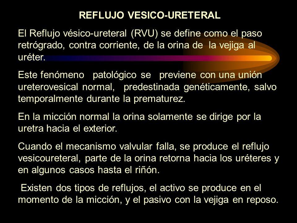 REFLUJO VESICO-URETERAL