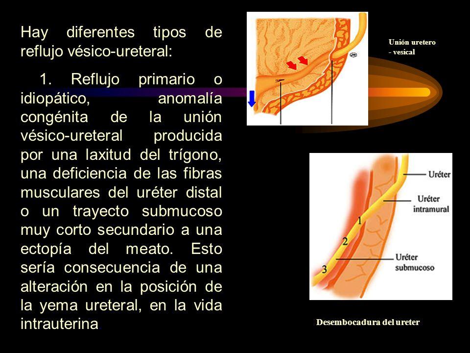 Desembocadura del ureter