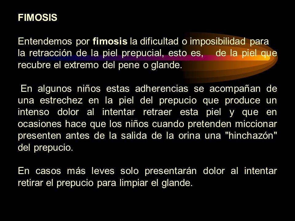 FIMOSIS Entendemos por fimosis la dificultad o imposibilidad para.