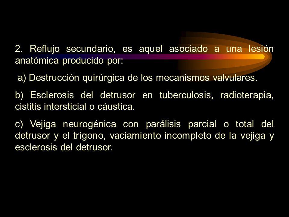 2. Reflujo secundario, es aquel asociado a una lesión anatómica producido por: