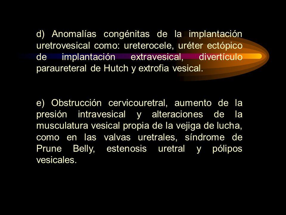 d) Anomalías congénitas de la implantación uretrovesical como: ureterocele, uréter ectópico de implantación extravesical, divertículo paraureteral de Hutch y extrofia vesical.